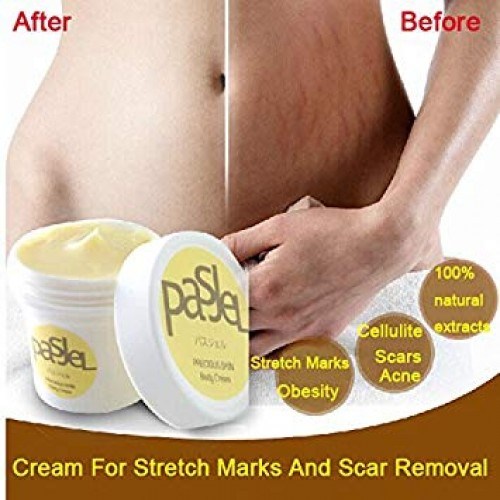 PASJEL STRETCHMARK REMOVAL CREAM