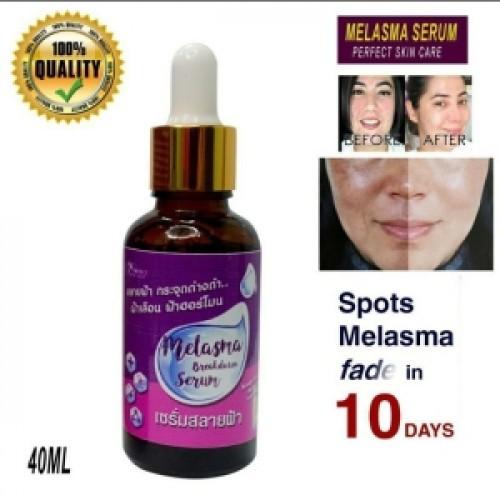 Melasma Breakdown Serum